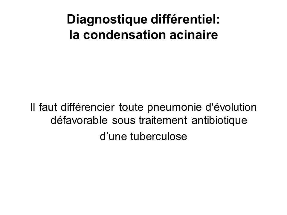 Diagnostique différentiel: la condensation acinaire