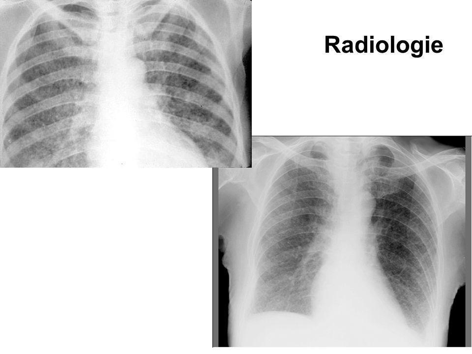 Radiologie Poate fi normala la debut