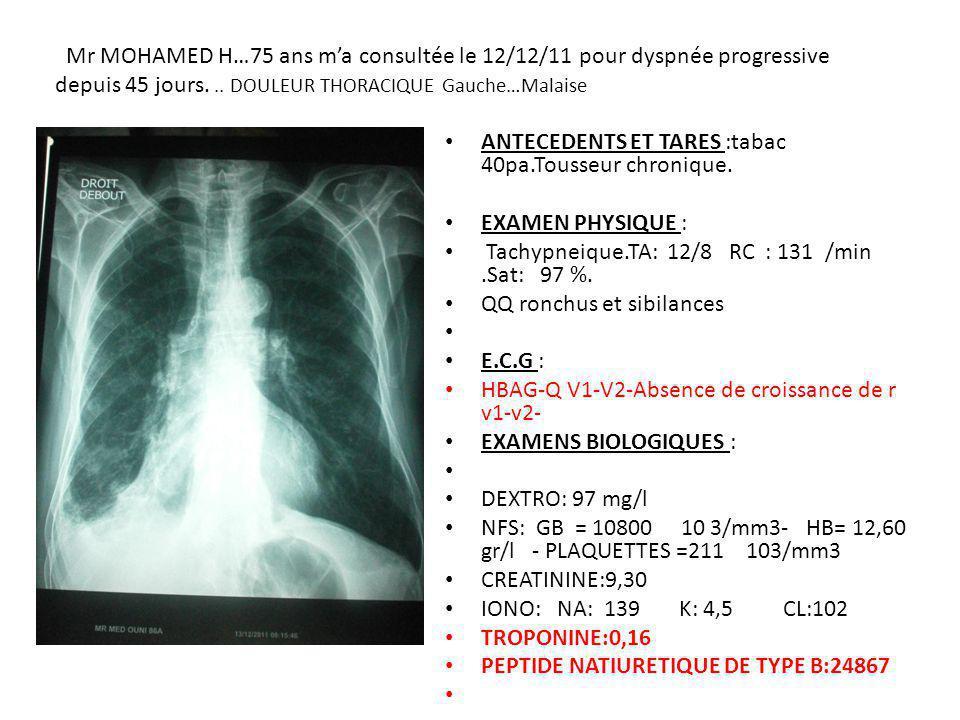 .. : Mr MOHAMED H…75 ans m'a consultée le 12/12/11 pour dyspnée progressive depuis 45 jours. .. DOULEUR THORACIQUE Gauche…Malaise
