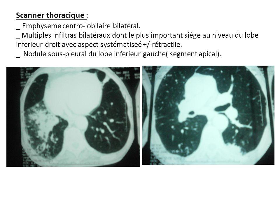 Scanner thoracique : _ Emphysème centro-lobilaire bilatéral