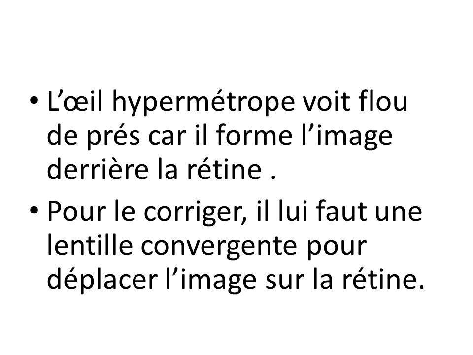 L'œil hypermétrope voit flou de prés car il forme l'image derrière la rétine .