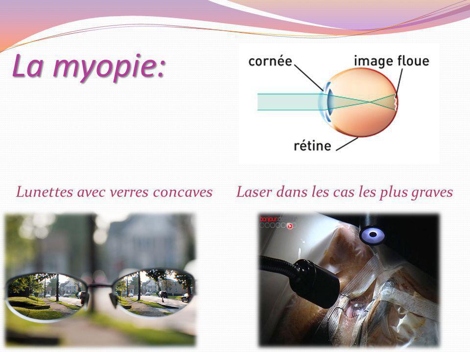 La myopie: Lunettes avec verres concaves