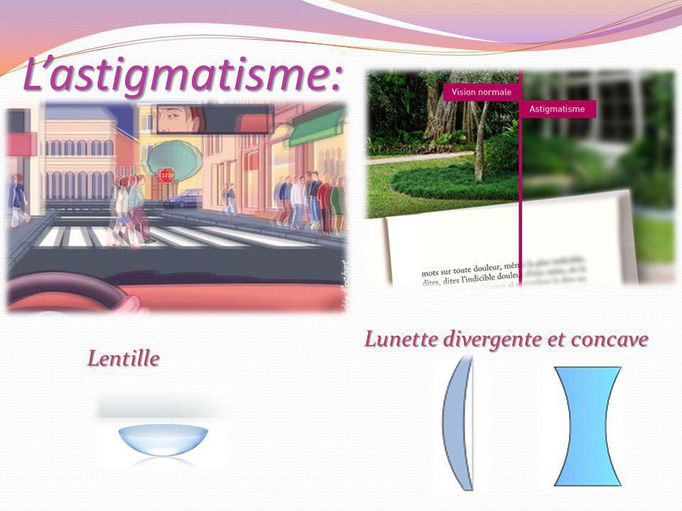L'astigmatisme: Lunette divergente et concave Lentille