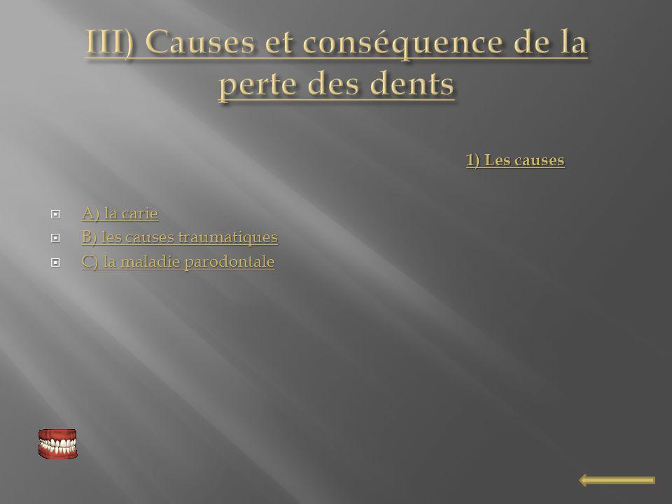 III) Causes et conséquence de la perte des dents