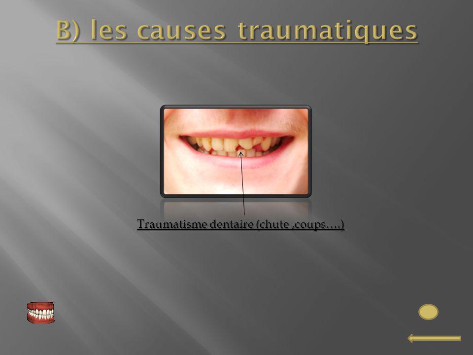 B) les causes traumatiques