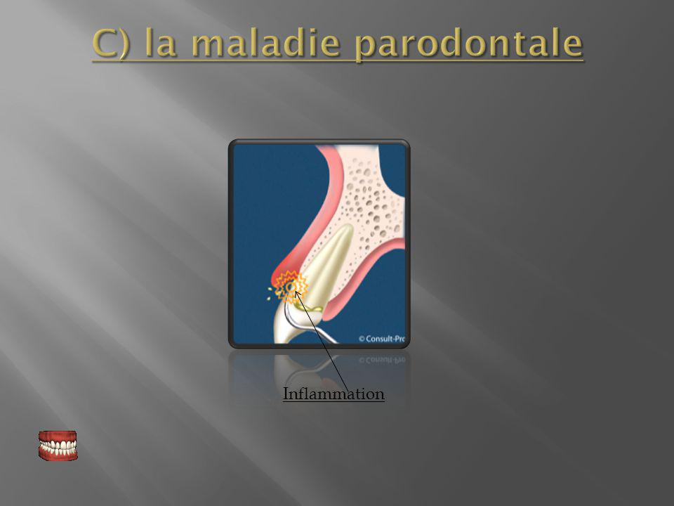 C) la maladie parodontale