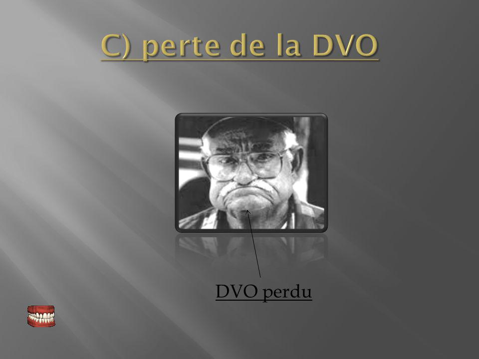 C) perte de la DVO DVO perdu