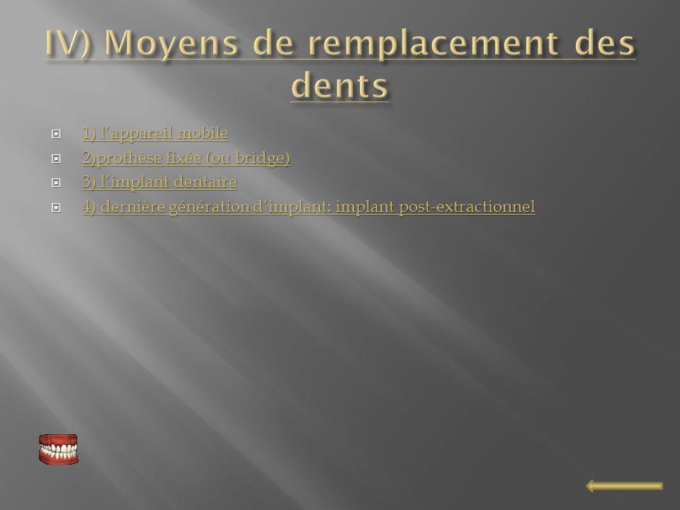 IV) Moyens de remplacement des dents