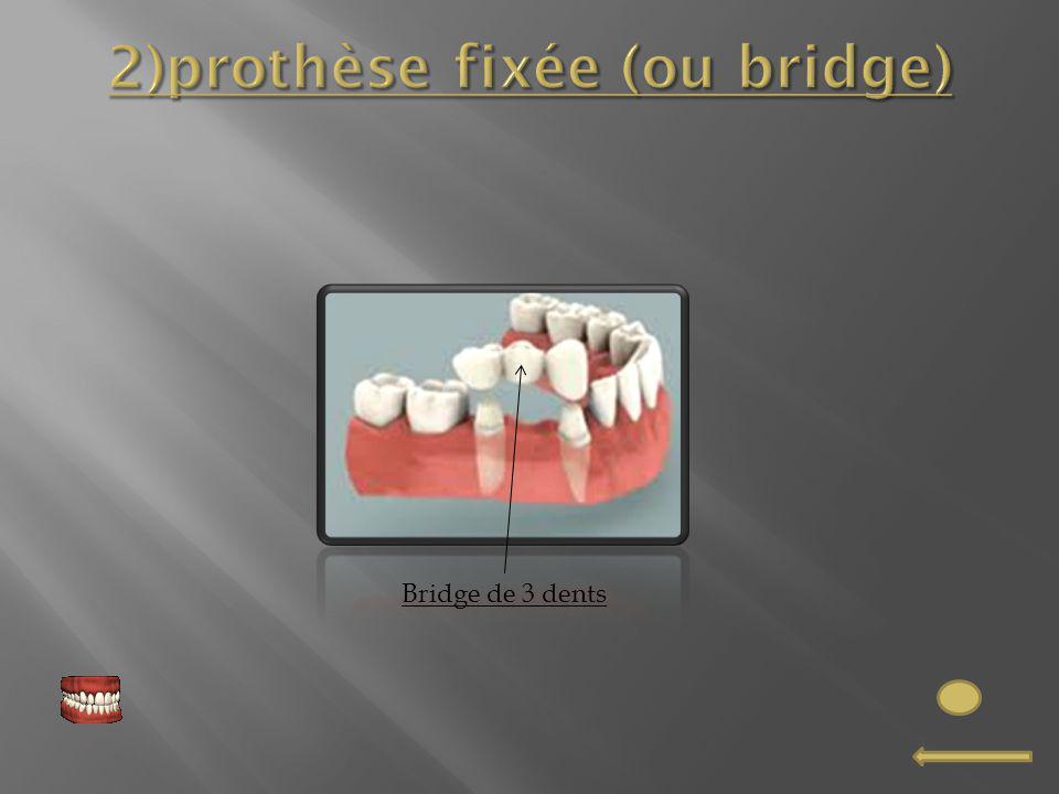 2)prothèse fixée (ou bridge)