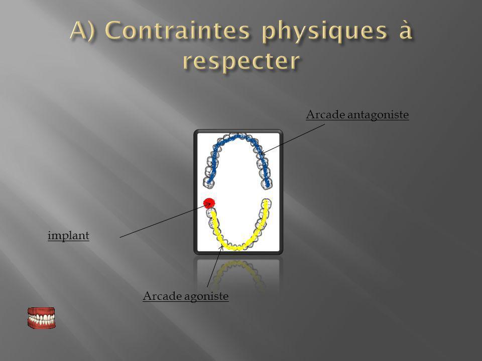 A) Contraintes physiques à respecter
