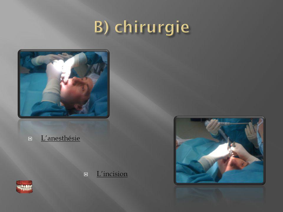 B) chirurgie L'anesthésie L'incision