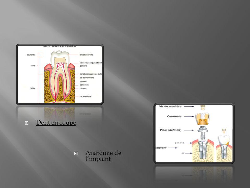 Dent en coupe Anatomie de l'implant