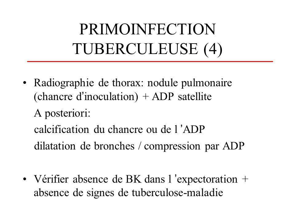 PRIMOINFECTION TUBERCULEUSE (4)