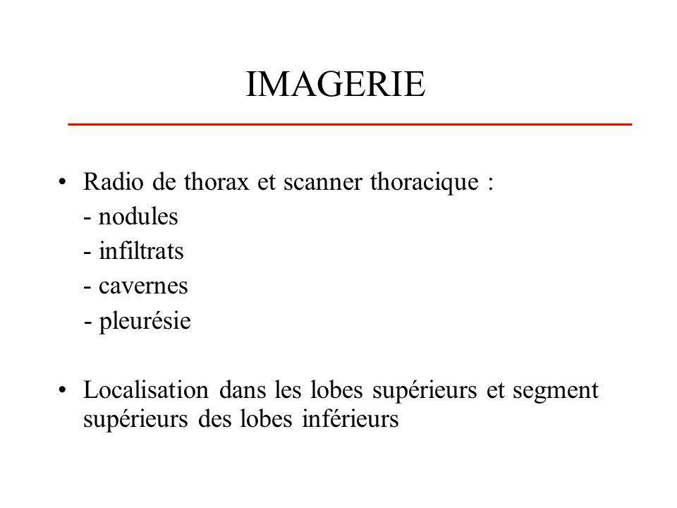 IMAGERIE Radio de thorax et scanner thoracique : - nodules