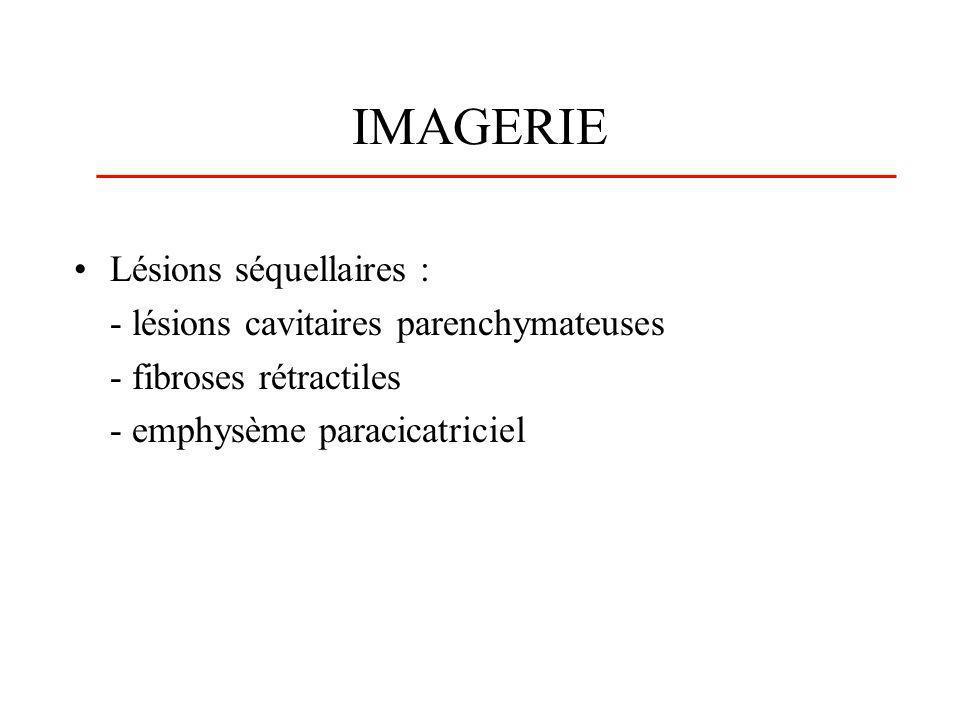 IMAGERIE Lésions séquellaires : - lésions cavitaires parenchymateuses
