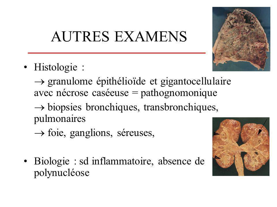 AUTRES EXAMENS Histologie :