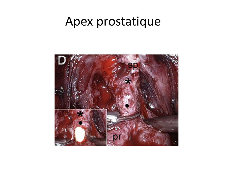 Apex prostatique