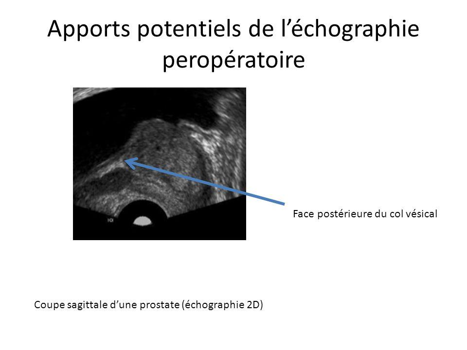 Apports potentiels de l'échographie peropératoire