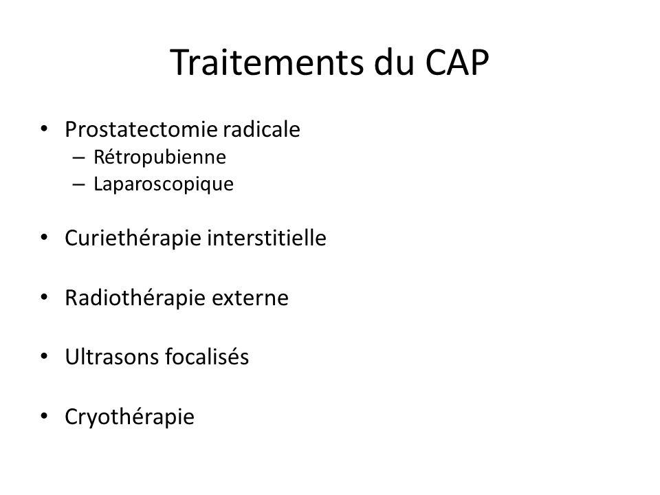Traitements du CAP Prostatectomie radicale