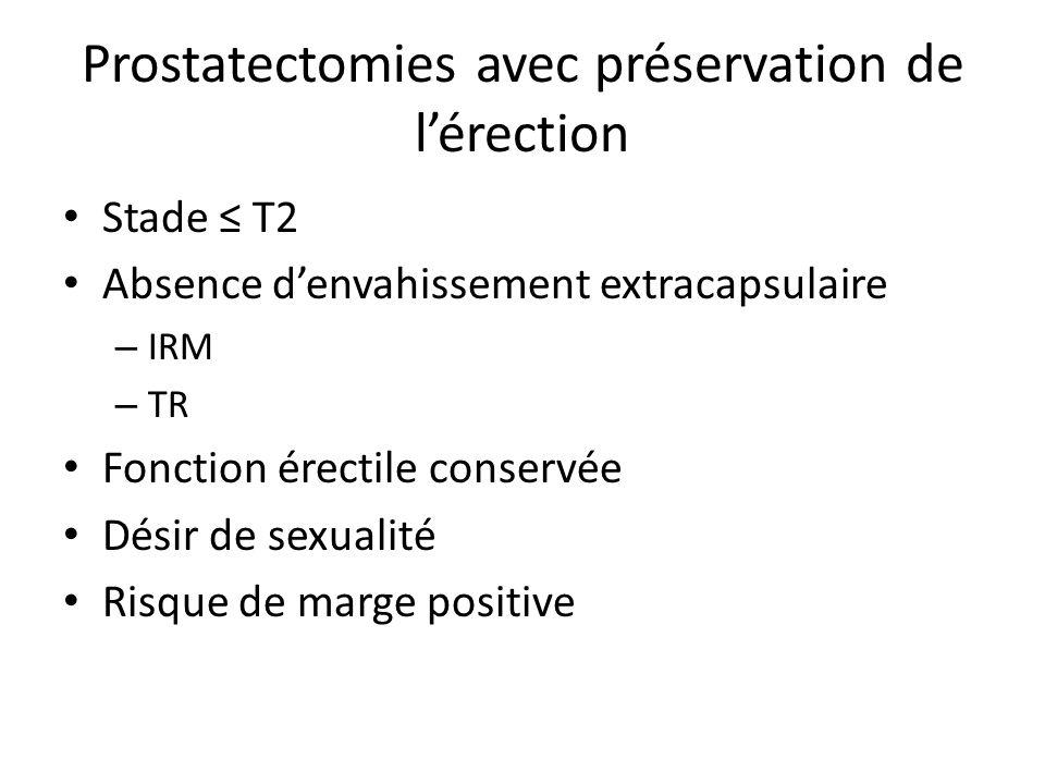 Prostatectomies avec préservation de l'érection