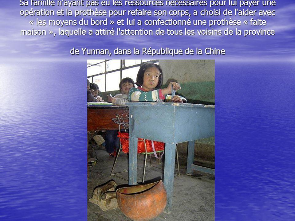 Sa famille n ayant pas eu les ressources nécessaires pour lui payer une opération et la prothèse pour refaire son corps, a choisi de l aider avec « les moyens du bord » et lui a confectionné une prothèse « faite maison », laquelle a attiré l attention de tous les voisins de la province de Yunnan, dans la République de la Chine