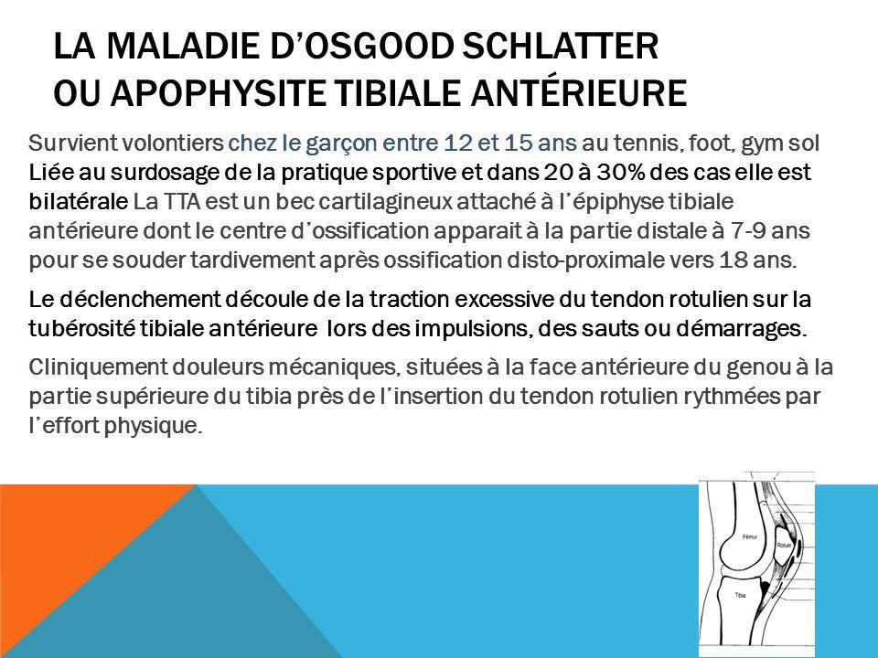 La maladie d'Osgood Schlatter ou apophysite tibiale antérieure