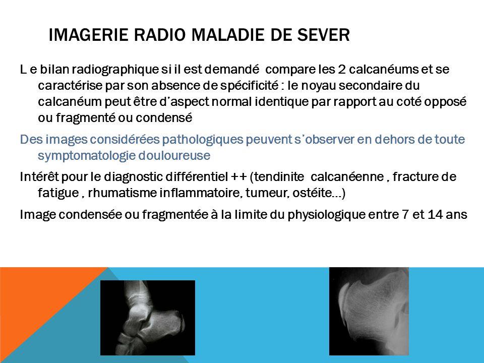 Imagerie radio Maladie dE Sever