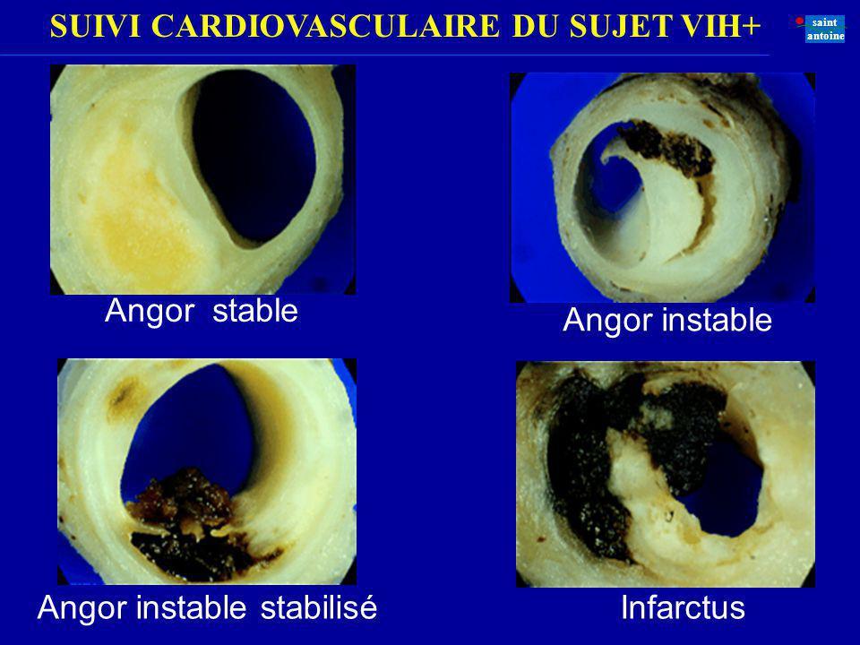 Angor stable Angor instable Angor instable stabilisé Infarctus