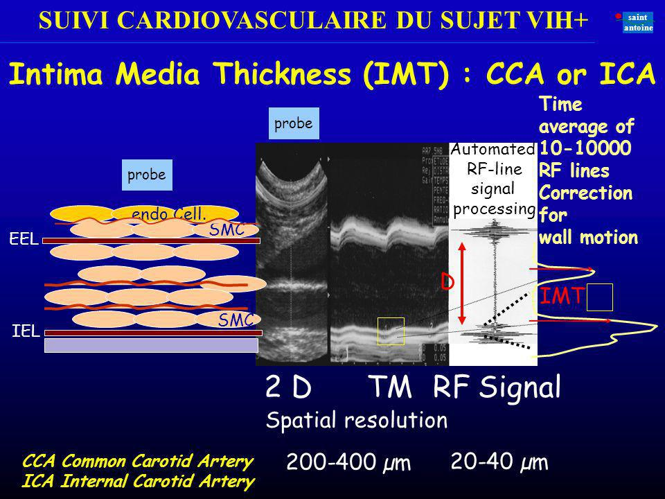 Intima Media Thickness (IMT) : CCA or ICA