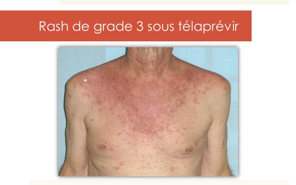 Rash de grade 3 sous télaprévir