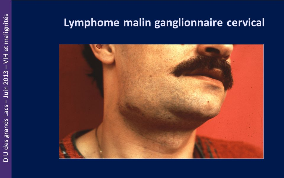 Lymphome malin ganglionnaire cervical