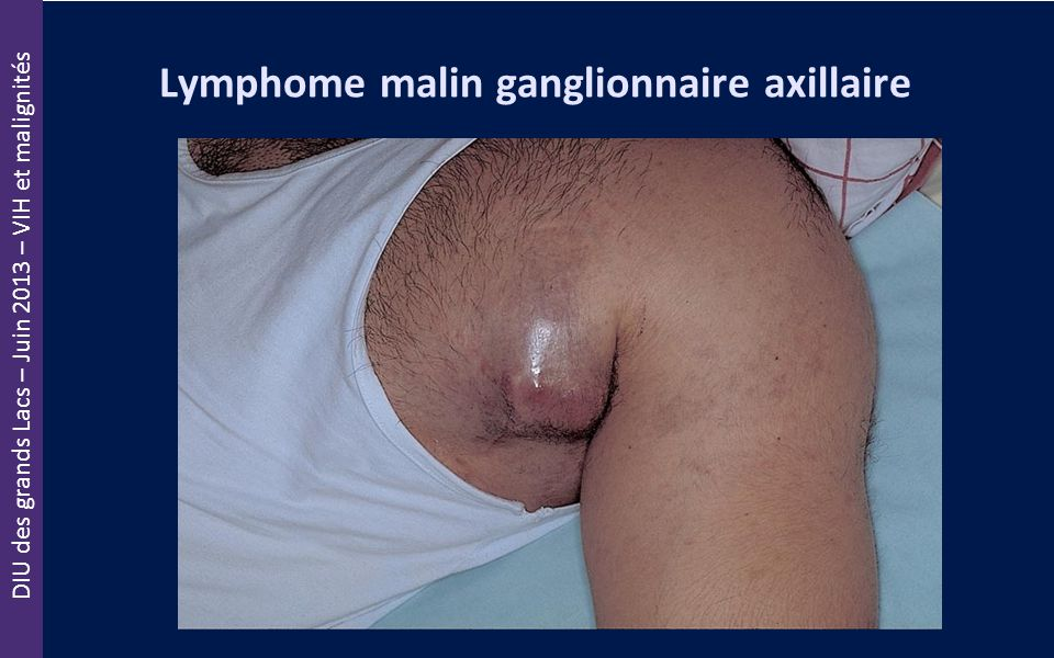 Lymphome malin ganglionnaire axillaire