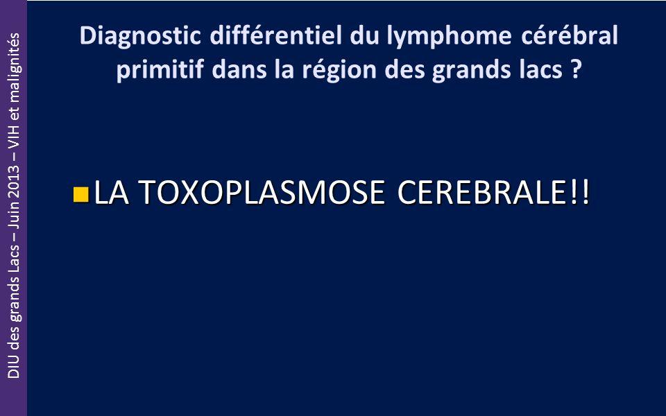 LA TOXOPLASMOSE CEREBRALE!!