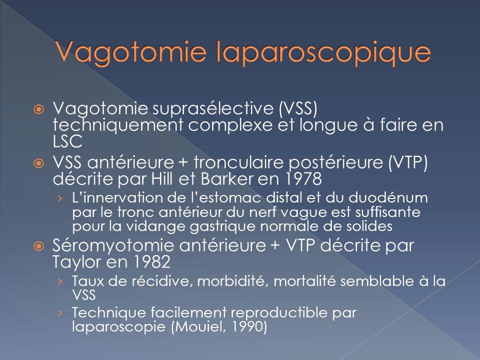 Vagotomie laparoscopique