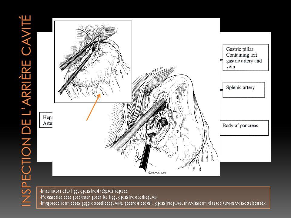 Inspection de l'arrière cavité