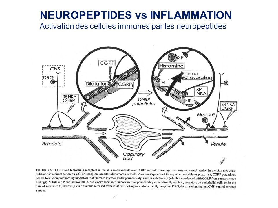 NEUROPEPTIDES vs INFLAMMATION