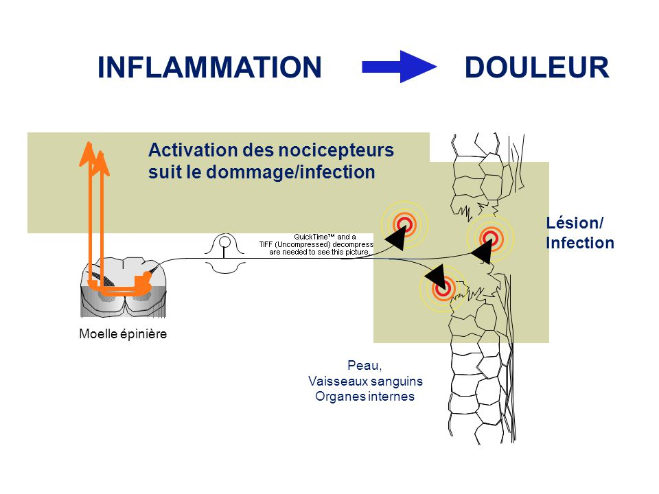 INFLAMMATION DOULEUR Activation des nocicepteurs