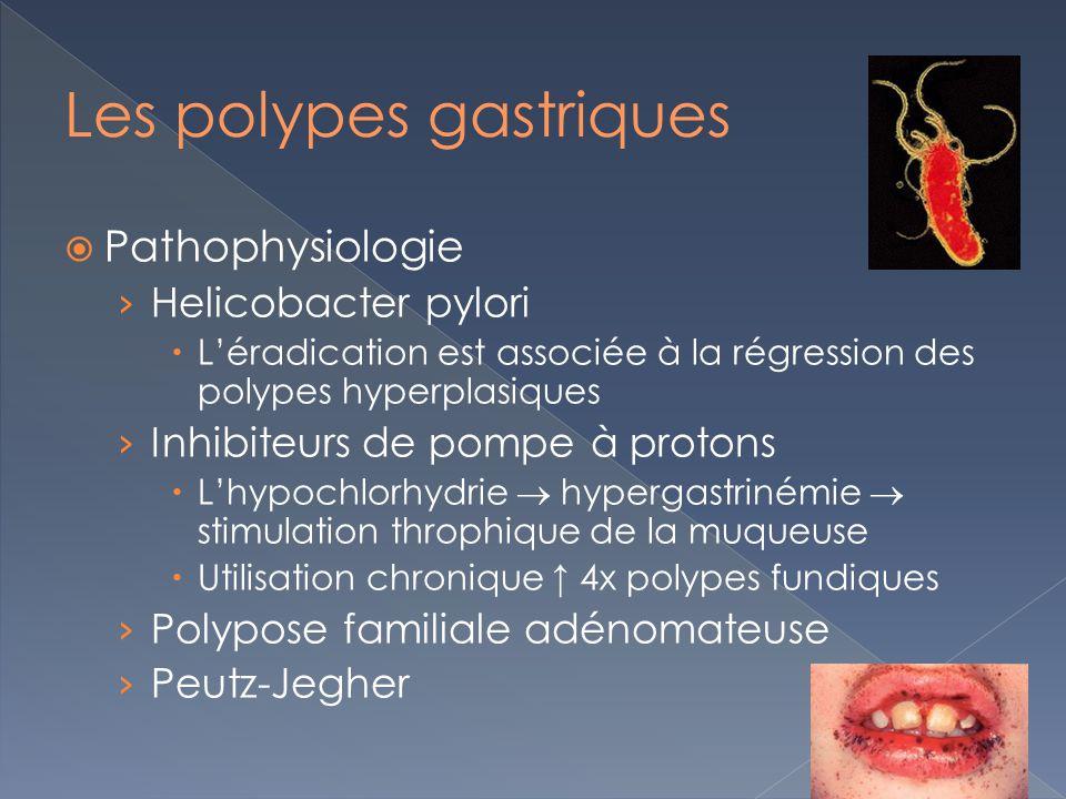 Les polypes gastriques