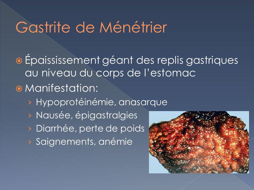 Gastrite de Ménétrier Épaississement géant des replis gastriques au niveau du corps de l'estomac. Manifestation:
