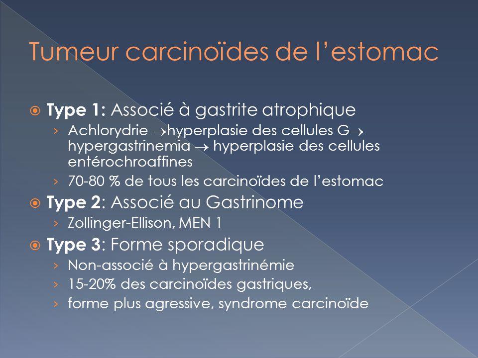 Tumeur carcinoïdes de l'estomac