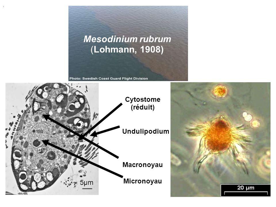 Mesodinium rubrum (Lohmann, 1908)