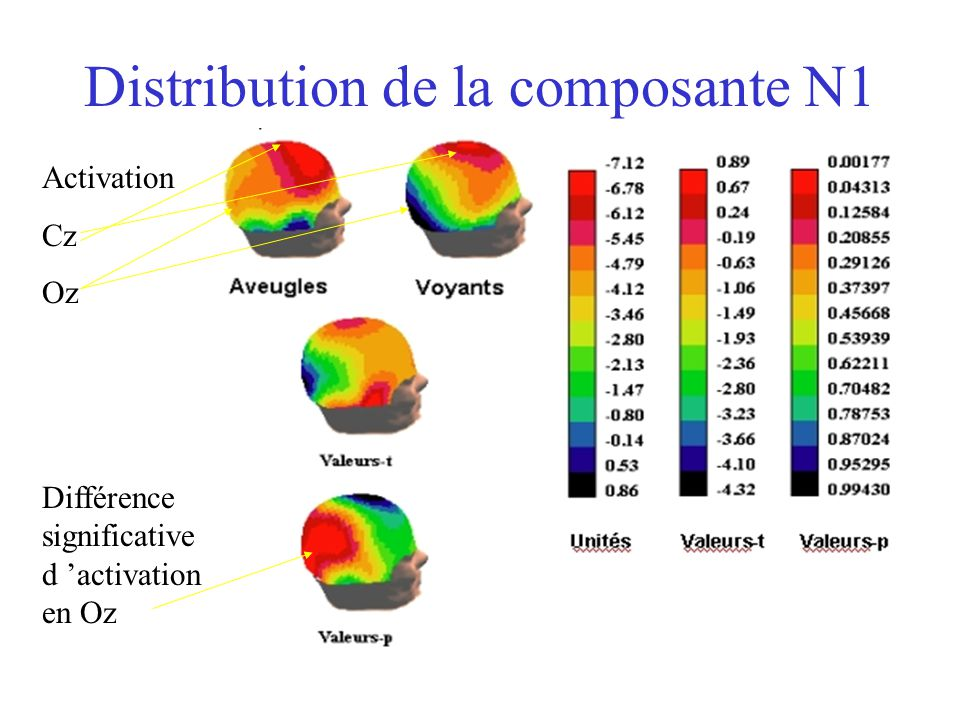 Distribution de la composante N1