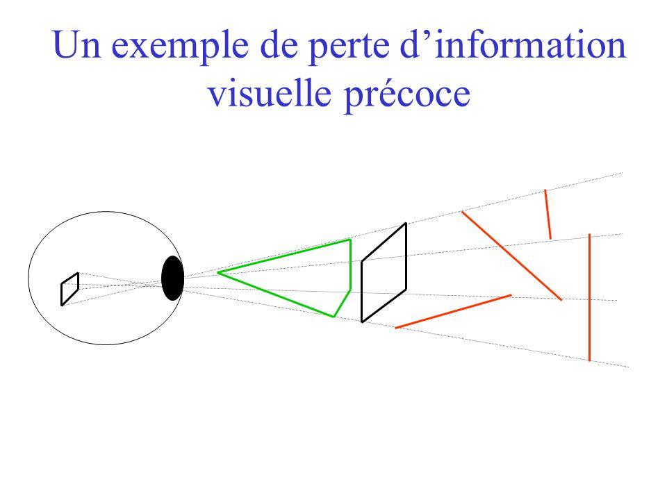 Un exemple de perte d'information visuelle précoce