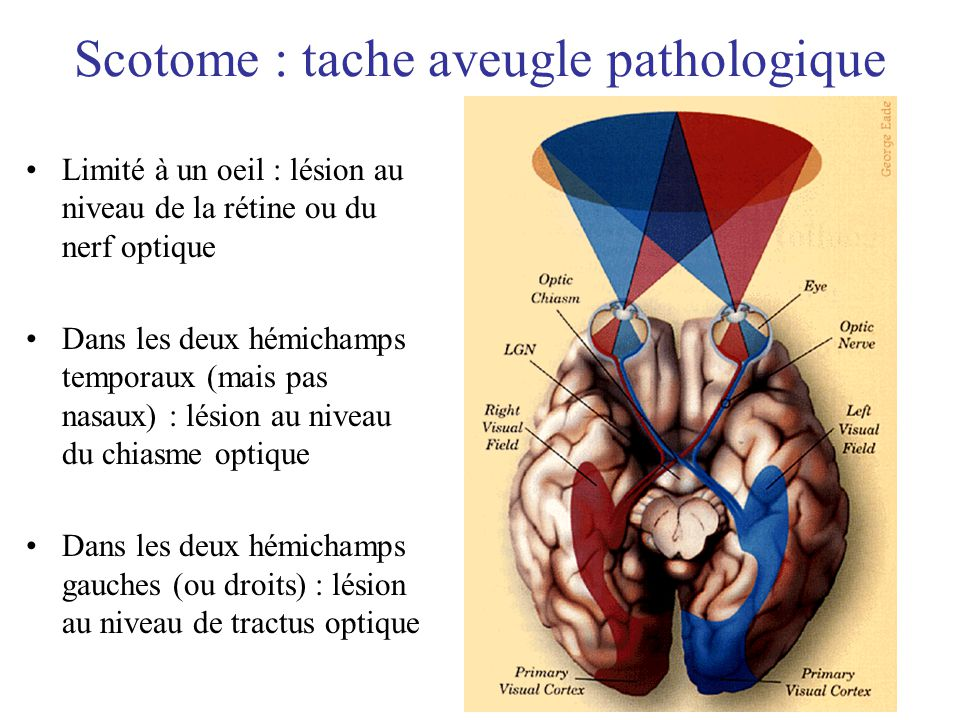 Scotome : tache aveugle pathologique