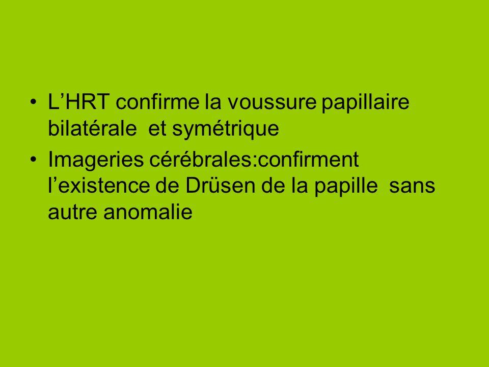 L'HRT confirme la voussure papillaire bilatérale et symétrique