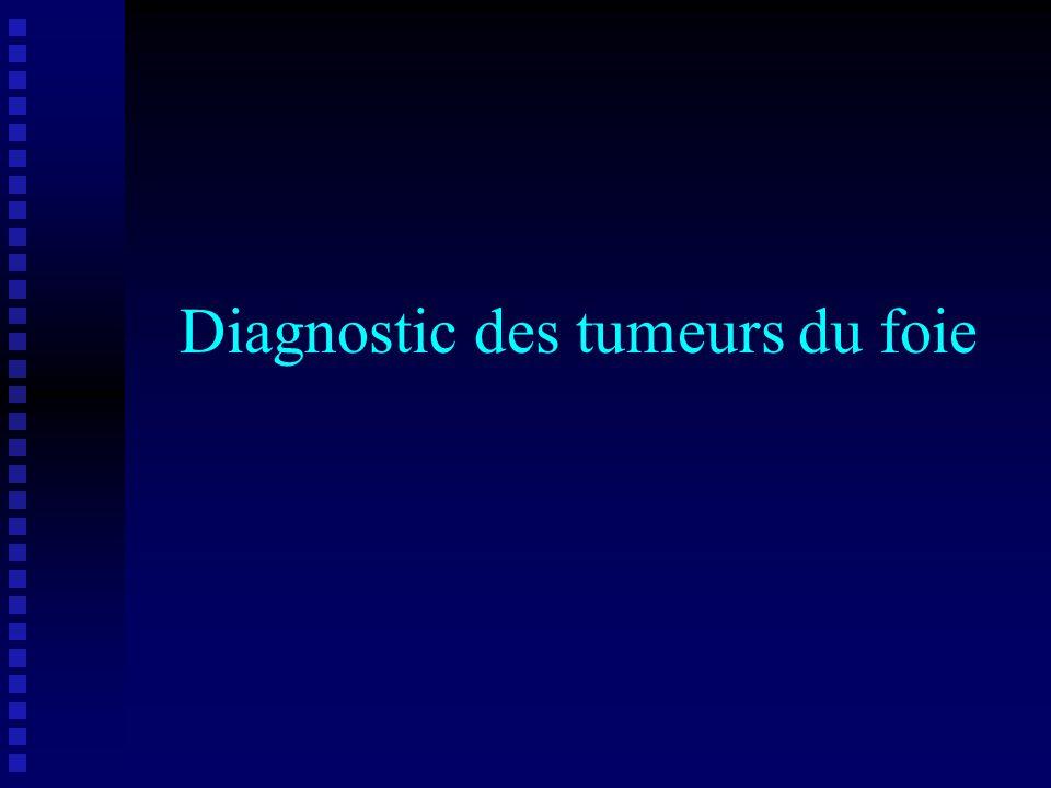 Diagnostic des tumeurs du foie