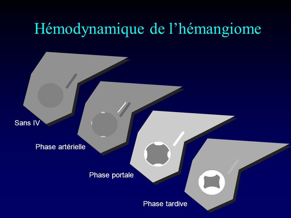 Hémodynamique de l'hémangiome