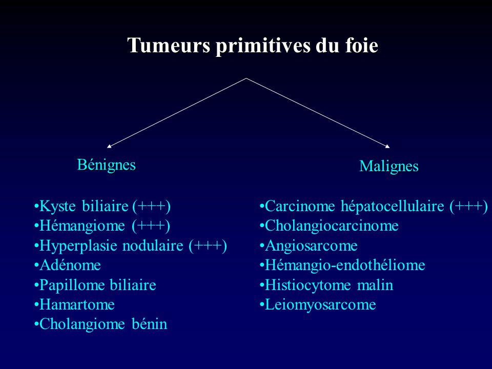 Tumeurs primitives du foie