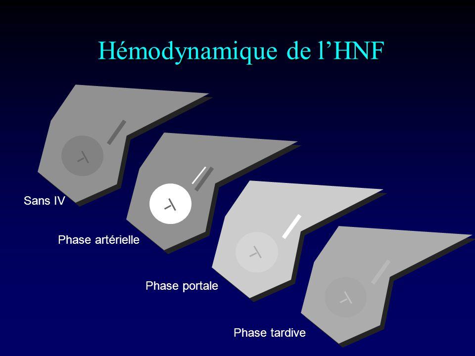Hémodynamique de l'HNF