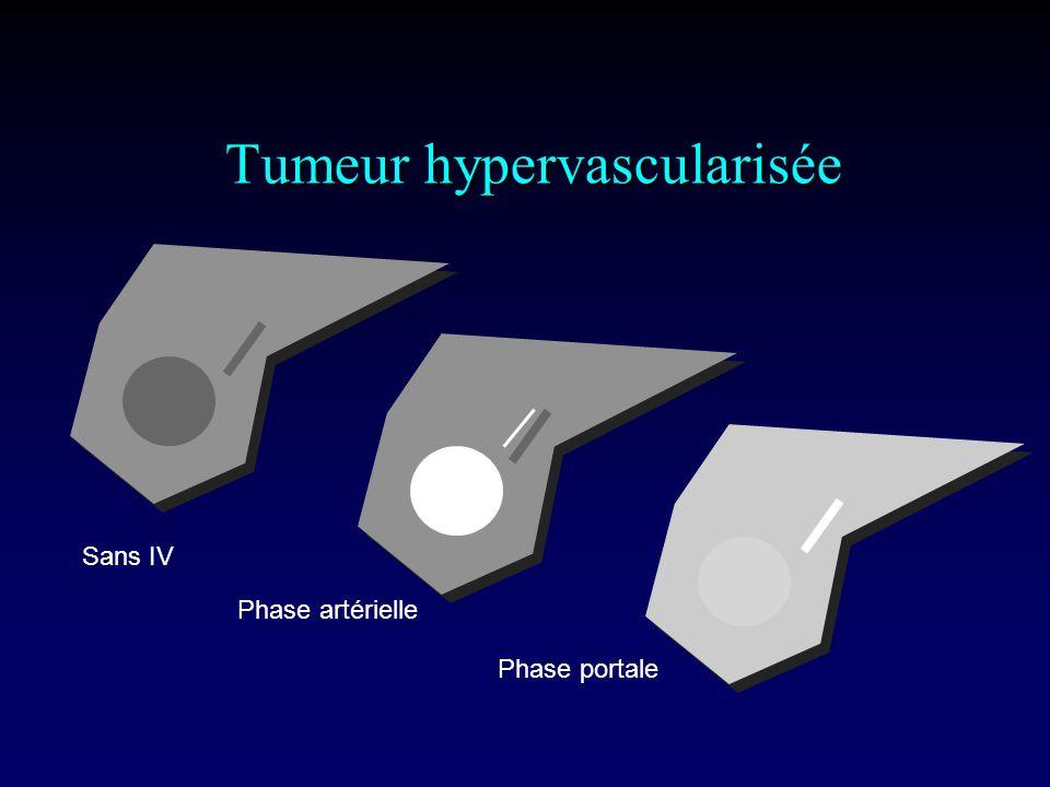 Tumeur hypervascularisée